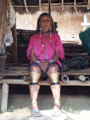 Thailandia-Donna-Hmong-con-caviglie-e-polpacci-deformati